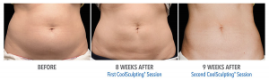 CoolSculpting_Before_After_Abs