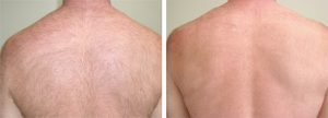 skin-care-laser-hari-removal-back